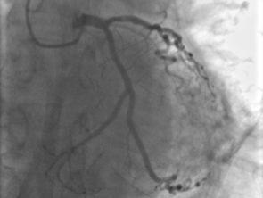 левая коронарная артерия