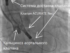 Имплантация клапана Acurate Neo - копия