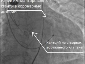 Кальциноз аортального клапана - копия