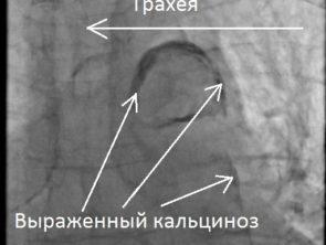 Фарфоровая аорта